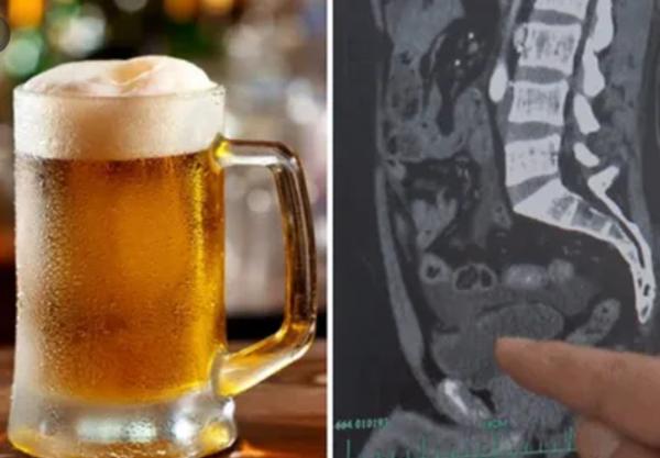 Uống một lúc 10 cốc bia, ma men nhịn tiểu 18 tiếng đến rỗi rách bàng quang - Ảnh 1
