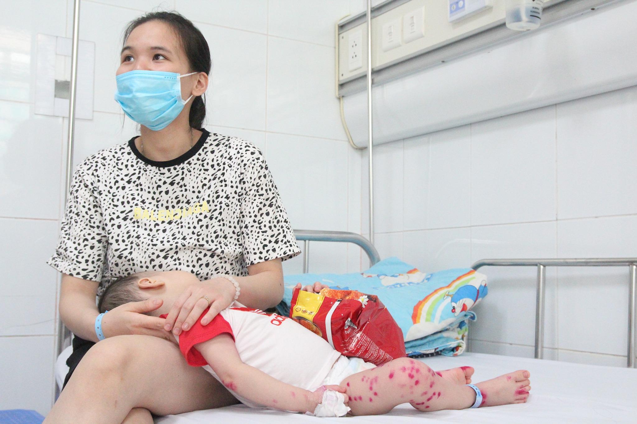 Khẩn cấp phòng chống dịch bệnh tay chân miệng ở trẻ em - Ảnh 1
