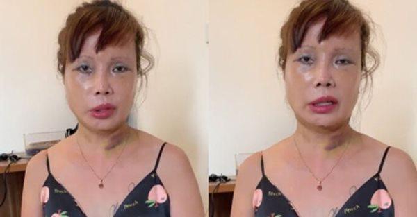 Tháo băng sau phẫu thuật, cô dâu 63 tuổi khiến nhiều người hoảng hốt vì nhan sắc mới - Ảnh 4