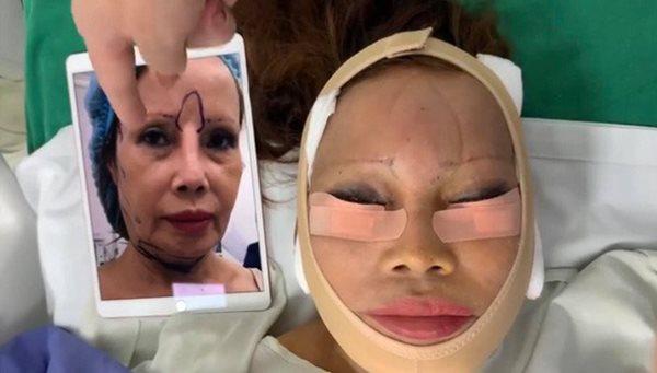 Tháo băng sau phẫu thuật, cô dâu 63 tuổi khiến nhiều người hoảng hốt vì nhan sắc mới - Ảnh 5