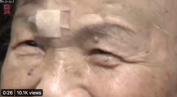 """Nhật Bản: Cụ bà 82 tuổi dùng tay không """"đại chiến"""", đánh gấu đen bỏ chạy vào rừng - Ảnh 2"""