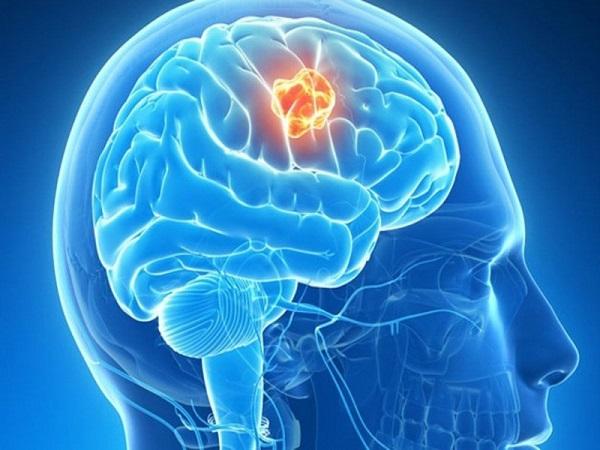 Những dấu hiệu ung thư dễ bị nhầm lẫn với các bệnh thông thường nhất, cần biết để phòng tránh - Ảnh 6