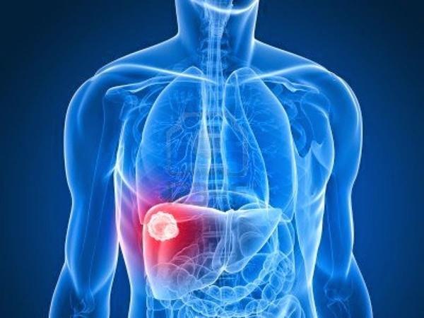Sáng dậy thấy biểu hiện này, có thể bạn đã bị ung thư gan - Ảnh 1