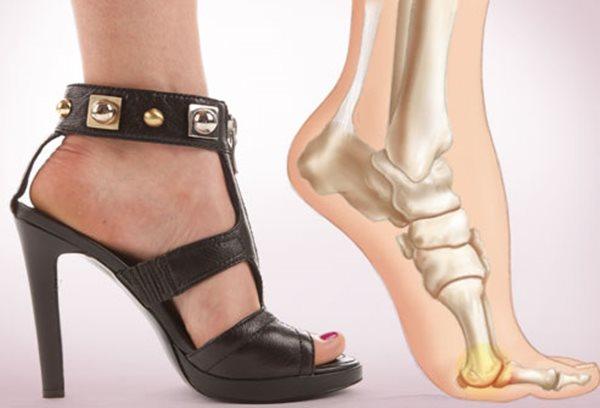 Những kiểu giày dép gây hại cho chân chị em cần loại bỏ hoặc hạn chế sử dụng - Ảnh 3
