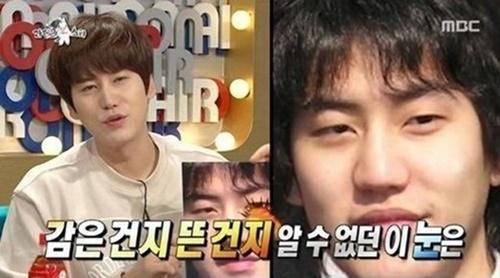 8 thần tượng Kpop thừa nhận đã phẫu thuật thẩm mỹ - Ảnh 12