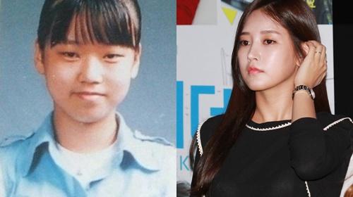 8 thần tượng Kpop thừa nhận đã phẫu thuật thẩm mỹ - Ảnh 6