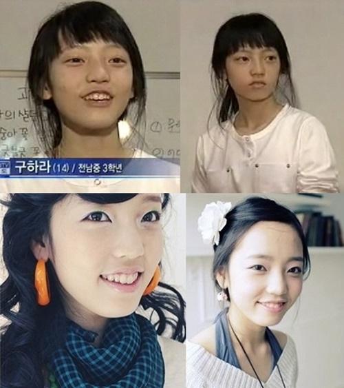 8 thần tượng Kpop thừa nhận đã phẫu thuật thẩm mỹ - Ảnh 3