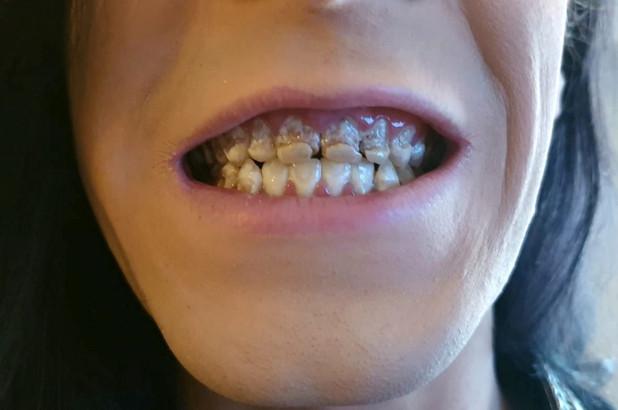 Uống 6 lon nước tăng lực mỗi ngày, chàng trai 21 tuổi mục nát cả hàm răng - Ảnh 1
