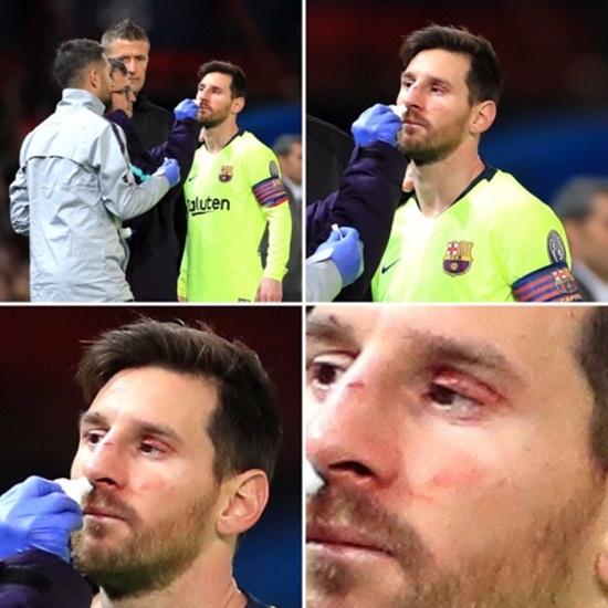 Cận cảnh gương mặt bầm dập của Messi sau pha va chạm với hậu vệ MU - Ảnh 6