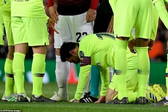 Cận cảnh gương mặt bầm dập của Messi sau pha va chạm với hậu vệ MU - Ảnh 3
