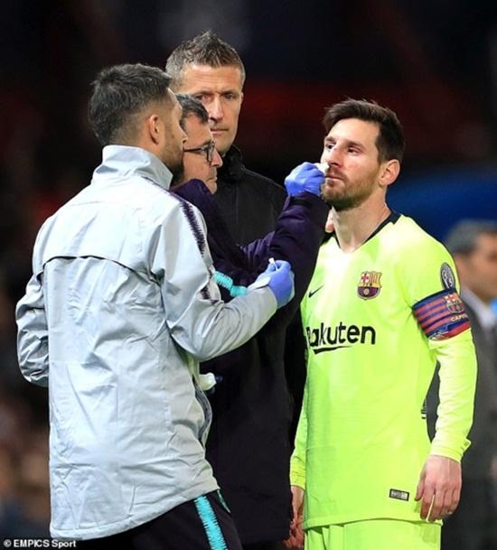 Cận cảnh gương mặt bầm dập của Messi sau pha va chạm với hậu vệ MU - Ảnh 5