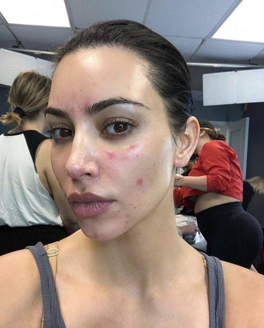 Kim Kardashian đăng ảnh cận mặt lấm tấm vết đỏ vì vảy nến - Ảnh 1