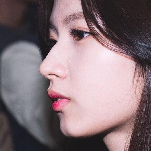 Qua rồi thời mũi đẹp là phải thẳng tắp, nhiều idol Kpop sống mũi gồ lên vẫn được khen - Ảnh 3