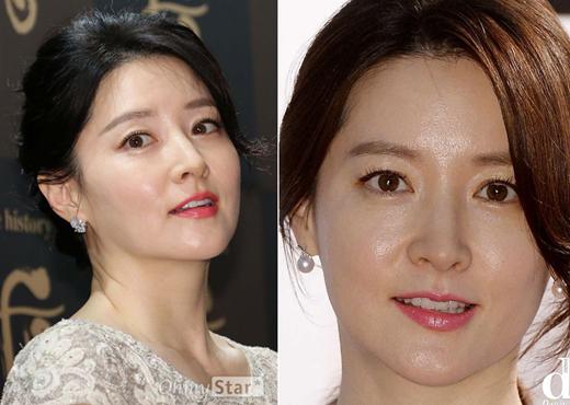 """Ảnh cận mặt """"soi từng lông tơ"""" sao Hàn: Mỹ nhân huyền thoại Lee Young Ae quá đẹp nhưng đàn em còn gây sốc hơn - Ảnh 1"""