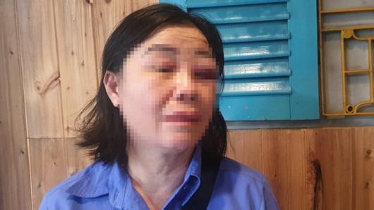 Công an vào cuộc vụ nữ nhân viên xe buýt bị hành hung khi nhắc chuyện mở nhạc - Ảnh 1