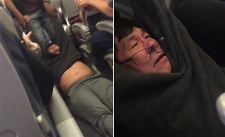 Cục hàng không Chicago: David Dao hành xử bạo lực trước khi bị đuổi - Ảnh 1