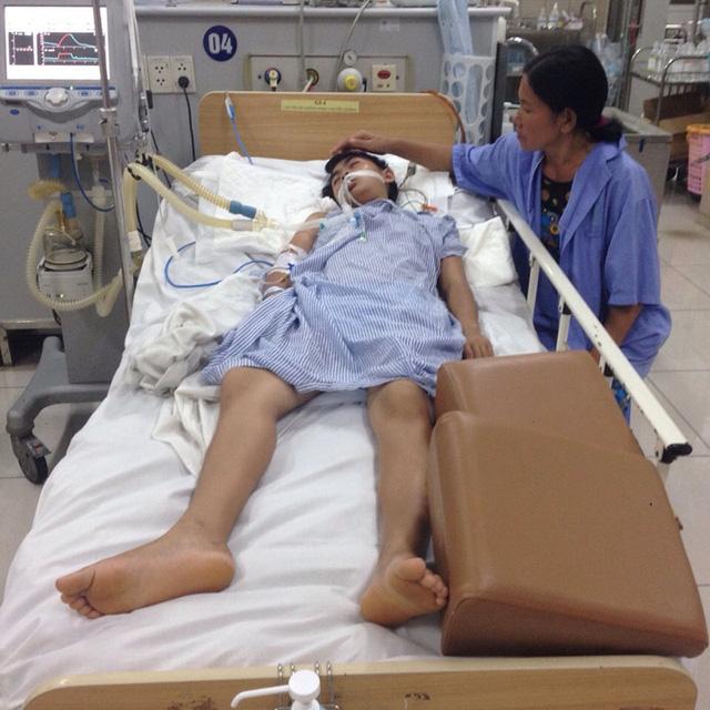 Bị rắn độc cắn khi đang ngủ, nữ sinh 17 tuổi cấp cứu trong tình trạng nguy kịch - Ảnh 1