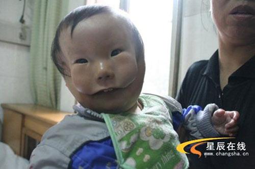 """Siêu âm đều đặn, bà mẹ trẻ vẫn khóc nghẹn khi sinh con """"2 mặt"""" - Ảnh 1"""