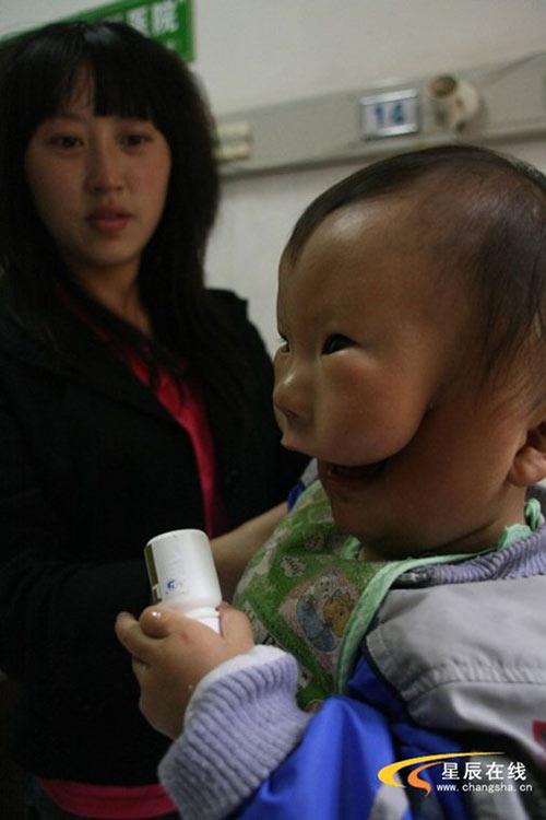 """Siêu âm đều đặn, bà mẹ trẻ vẫn khóc nghẹn khi sinh con """"2 mặt"""" - Ảnh 3"""