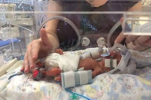 Cuộc đấu tranh vất vả giành lại sự sống của cặp song sinh sớm 3 tháng - Ảnh 2