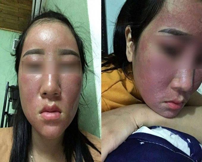 Những loại kem dưỡng trắng hủy hoại da không kém gì kem trộn vẫn đang 'che mắt' phái đẹp - Ảnh 1