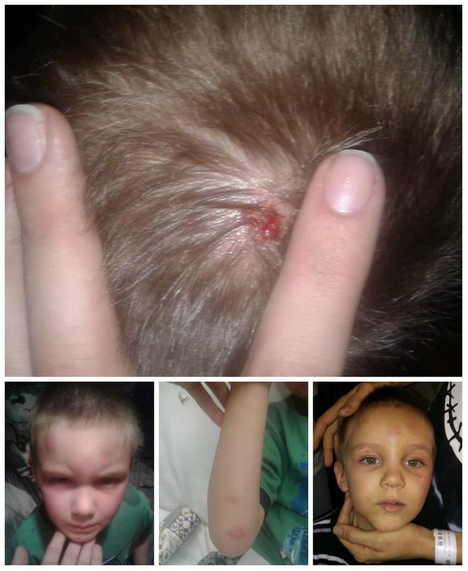 """Bé trai 5 tuổi bị bạn trai của mẹ bạo hành dã man vì tội """"nghịch quà Giáng sinh"""" - Ảnh 2"""