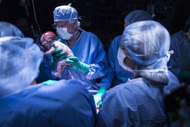 Em bé đầu tiên tại Mỹ ra đời từ người mẹ cấy ghép tử cung - Ảnh 1