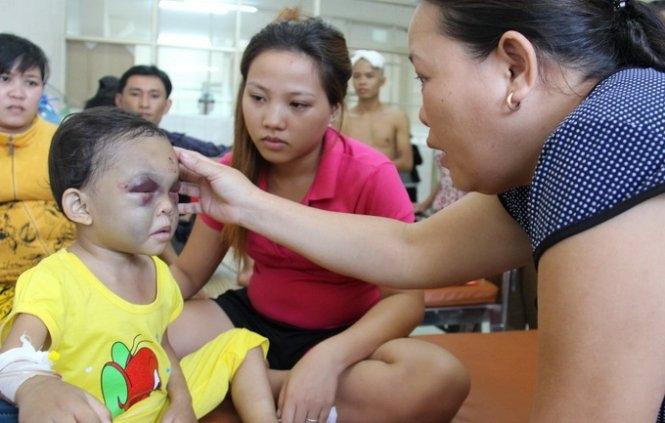 Xót xa những đứa trẻ bị cha mẹ bạo hành dã man đến gãy xương sườn, rạn sọ não - Ảnh 6