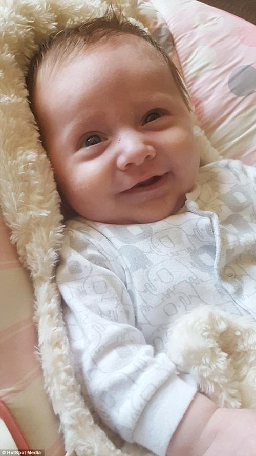 Bà mẹ dị ứng suốt quá trình mang thai bất ngờ khi nhìn thấy cơ thể sau khi sinh - Ảnh 5