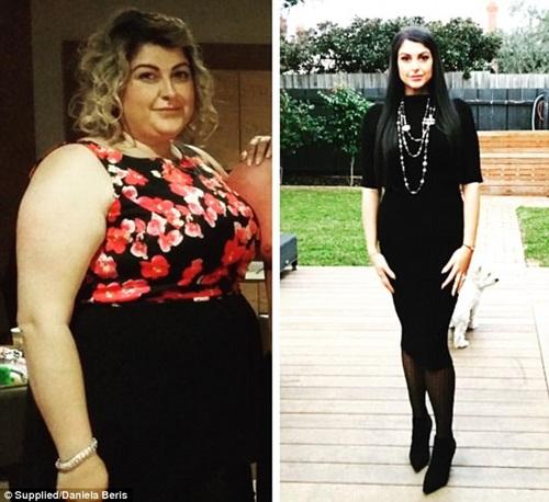 Không thể sinh con vì quá béo, người phụ nữ quyết định phẫu thuật dạ dày - Ảnh 1