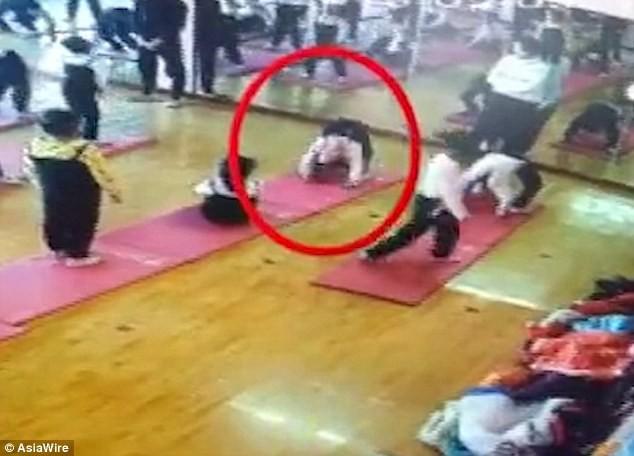 Tập Yoga, bé gái 4 tuổi nguy cơ liệt vĩnh viễn - Ảnh 1