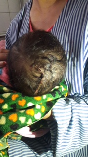 Con dâu đẻ khó, mẹ chồng dùng dao rạch khiến trẻ sơ sinh bị rách đầu - Ảnh 2