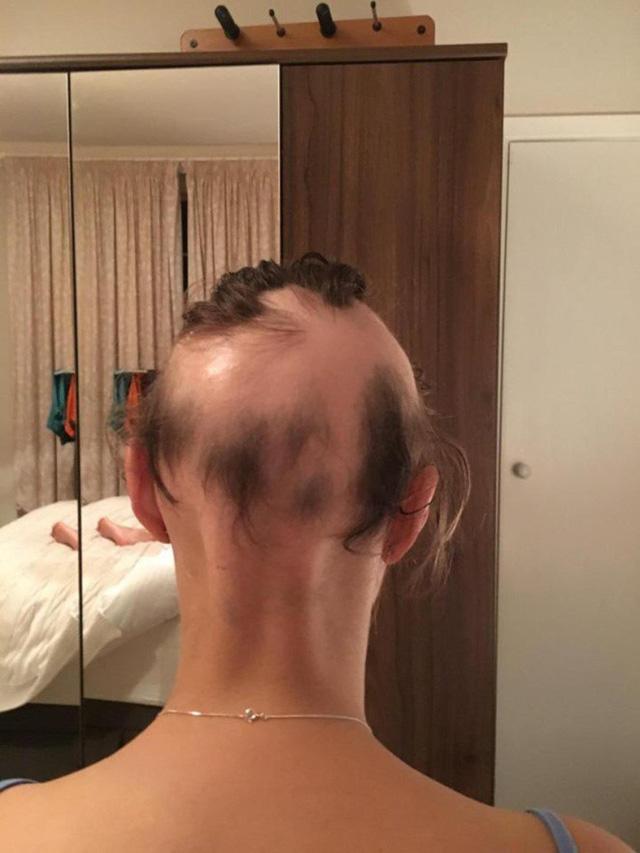 Cô dâu rụng 90% tóc trên đầu vì quá lo lắng chuẩn bị cho đám cưới - Ảnh 4