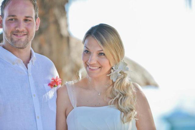 Cô dâu rụng 90% tóc trên đầu vì quá lo lắng chuẩn bị cho đám cưới - Ảnh 1