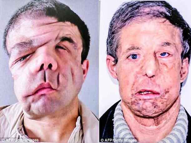 Người đàn ông có 3 khuôn mặt sau 2 lần cấy ghép - Ảnh 1