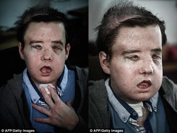 Người đàn ông có 3 khuôn mặt sau 2 lần cấy ghép - Ảnh 2