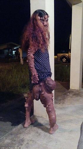 Mắc bệnh lạ, cô gái nổi u toàn thân bị dân làng xa lánh gọi là quái vật - Ảnh 2