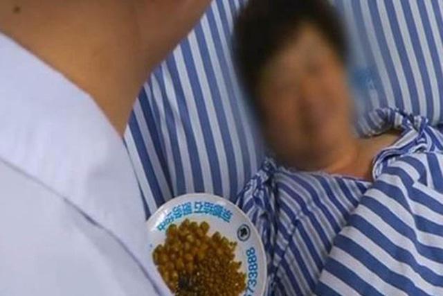 Thường xuyên ăn đồ dầu mỡ, người phụ nữ suýt chết vì gần 500 viên sỏi trong túi mật - Ảnh 1