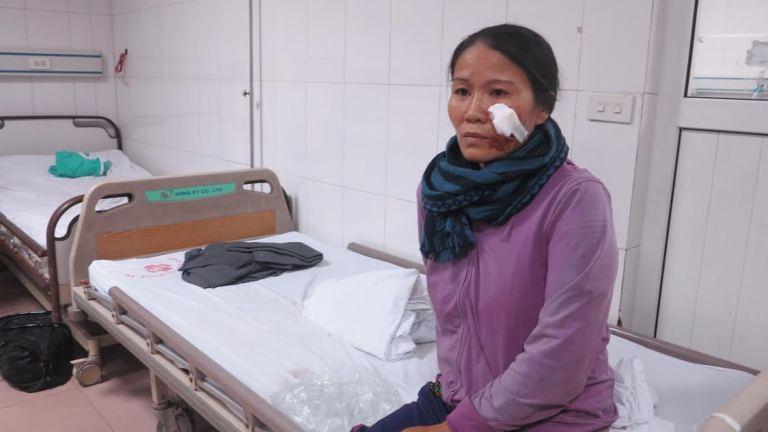 Vụ lật xe ở Nghệ An 14 người nhập viện: Hành khách kể lại giây phút sinh tử - Ảnh 2