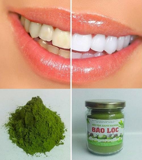 3 cách làm trắng răng bằng trà xanh đơn giản tại nhà - Ảnh 2