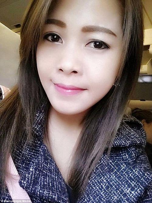 Đau răng không đi khám, khuôn mặt của người phụ nữ xinh đẹp bị biến dạng - Ảnh 1