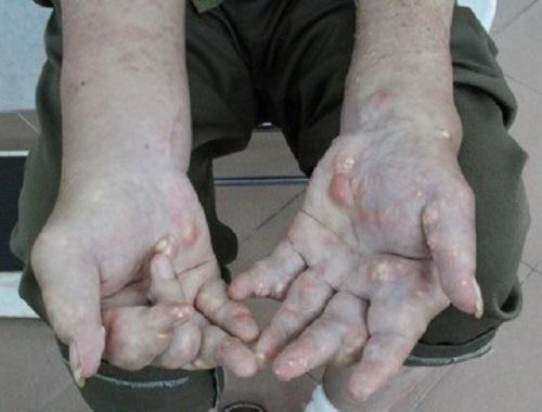 Kỳ diệu, bài thuốc nam chữa dứt điểm bệnh gút mãn tính và gút nặng! - Ảnh 1