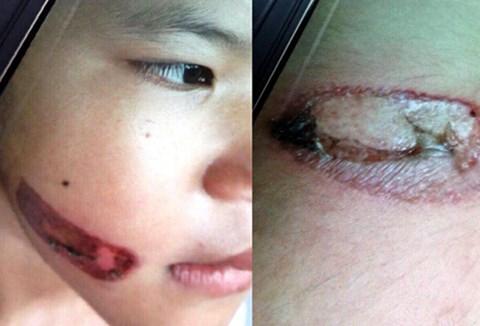 Giám định thương tật cháu bé 7 tuổi nghi bị dí sắt nung đỏ vào người - Ảnh 1