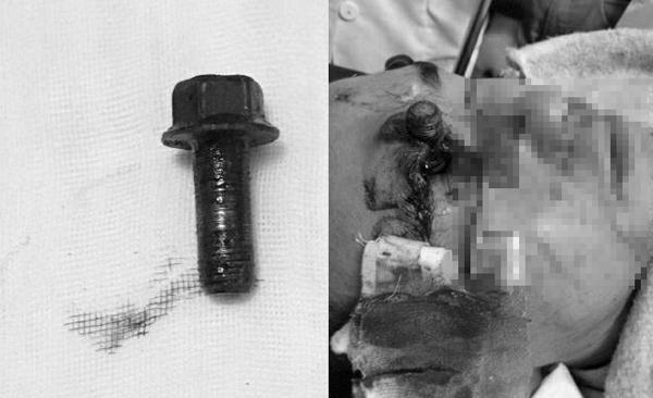 Thợ sửa ô tô bị ốc vít bắn qua mắt, xuyên vỡ sọ - Ảnh 1
