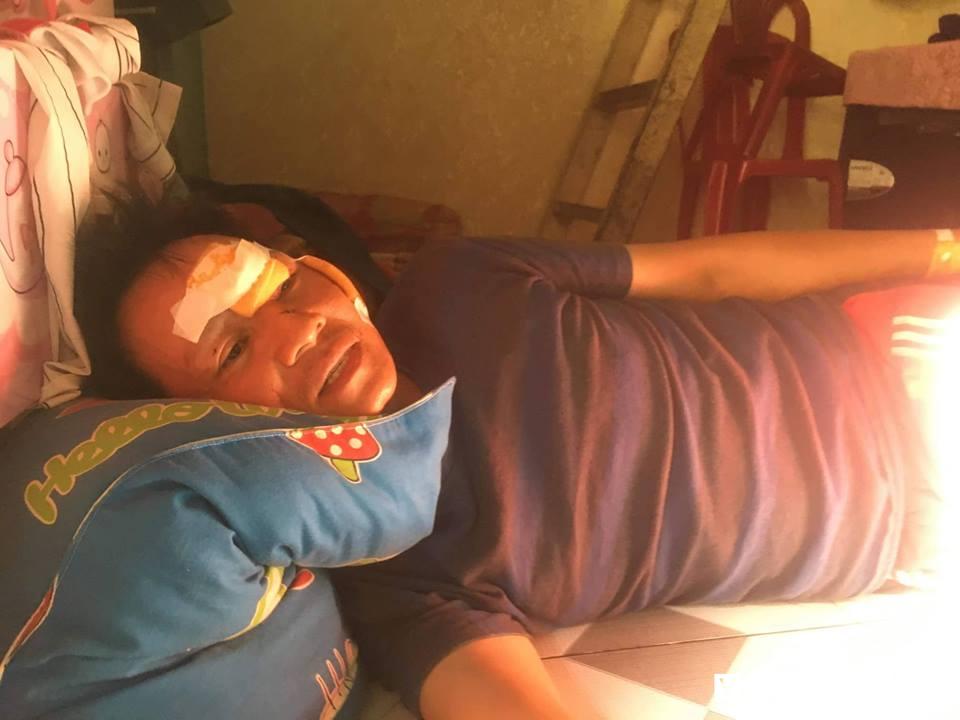 Vụ xe bồn bốc cháy, 6 người chết ở Bình Phước: Tài xế xe ba gác tiết lộ sốc - Ảnh 1