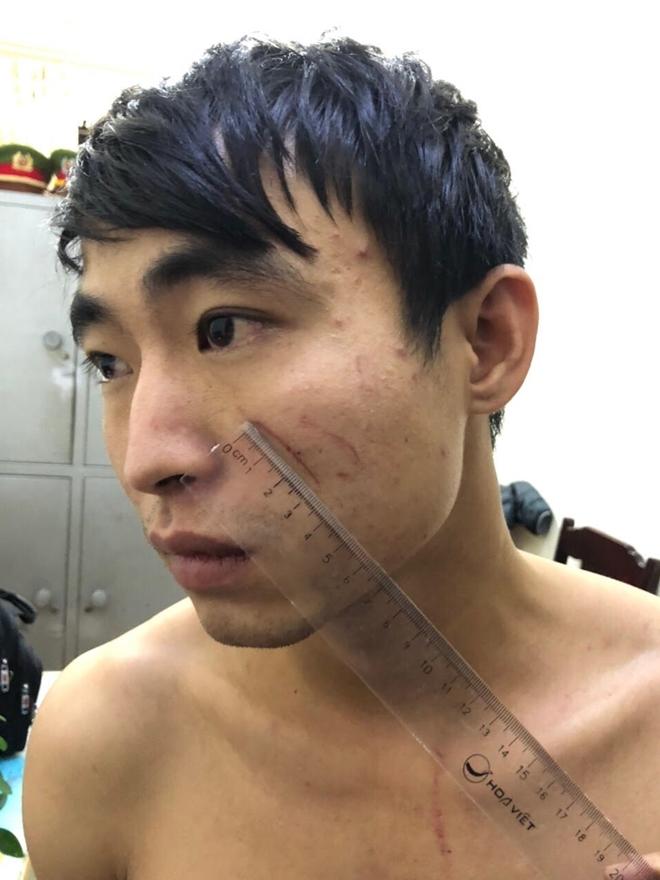 Vụ nữ sinh 18 tuổi bị sát hại trong nhà nghỉ ở Thanh Hóa: Lời khai ban đầu của người yêu nạn nhân - Ảnh 1