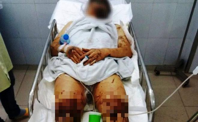Tin tức pháp luật mới nhất ngày 15/2/2019: Việt kiều Canada bị tạt axit, cắt đứt gân chân khi về quê ăn Tết - Ảnh 1