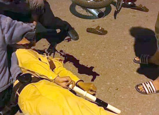 Hà Nội: Thiếu tá CSGT bị nam sinh tông trọng thương khi đang làm nhiệm vụ - Ảnh 2