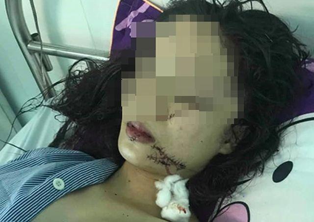 Tin tức thời sự 24h mới nhất ngày 22/4/2019: Thiếu nữ 18 tuổi xinh đẹp bị 3 cô gái dùng dao rạch mặt - Ảnh 1