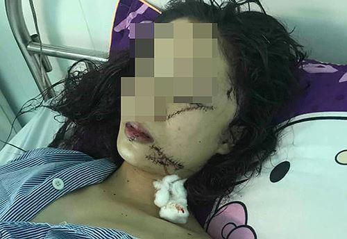 Vụ thiếu nữ 18 tuổi xinh đẹp bị 3 người rạch mặt: Hé lộ nguyên nhân bi kịch - Ảnh 1